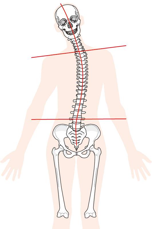 腱鞘炎(ド・ゲルバン)への当院のアプローチは?