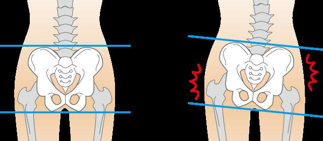 当院の「肋間神経痛」に対してのアプローチ